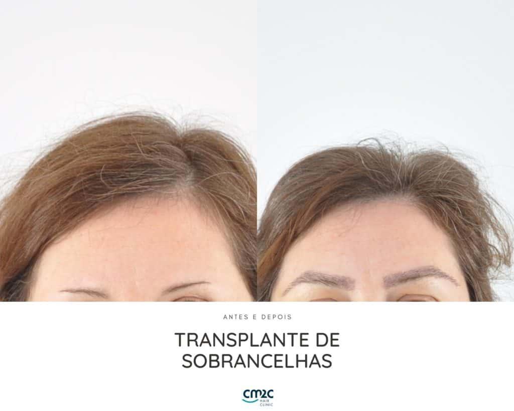 CM2C - Transplante de Sobrancelhas Antes e Depois