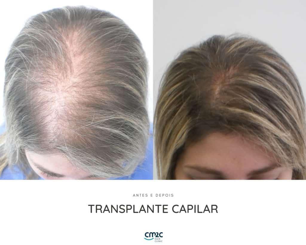CM2C - Transplante Capilar Antes e Depois
