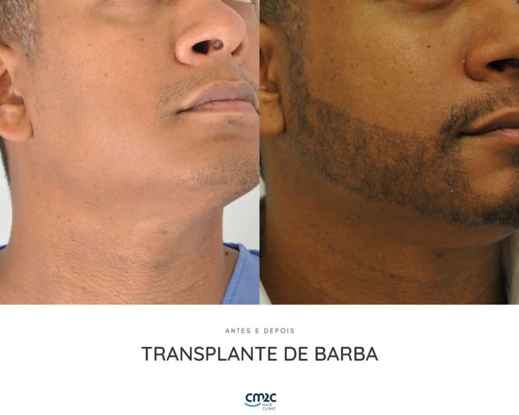 CM2C - Transplante de Barba Antes e Depois