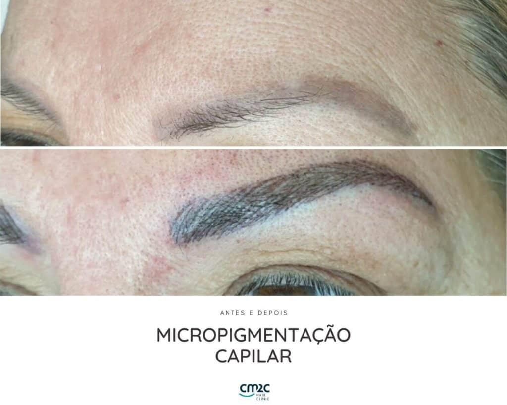 CM2C - Micropigmnetação Capilar