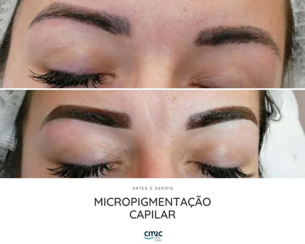 micropigmentação-2