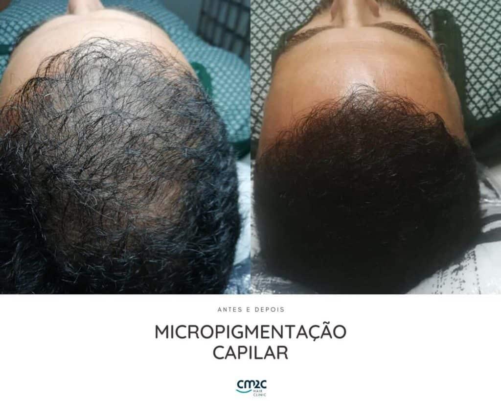 micropigmentação-4